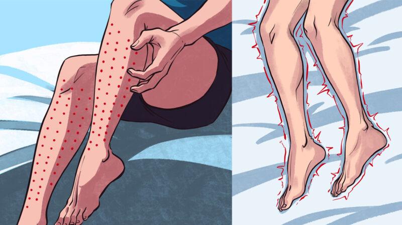 Modalități de a verifica dacă aveți sindromul picioarelor neliniștite și de ce trebuie să vedeți un medic dacă faceți acest lucru