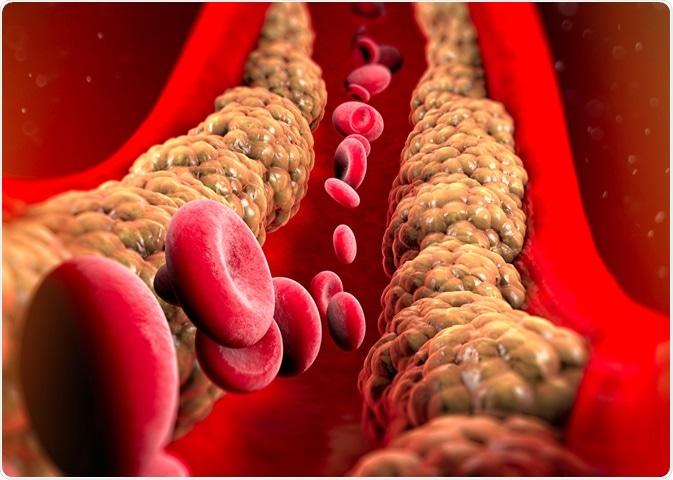 8 moduri de a vă reduce trigliceridele și colesterolul