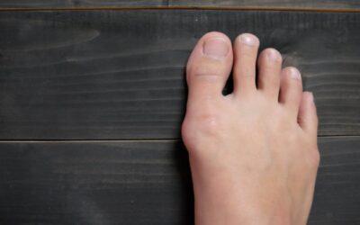 Cum să ai grijă de monturile dureroase: Remediile care iau durerea cu mâna
